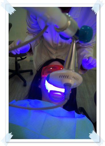 【牙醫】高雄牙醫診所做牙齒冷光美白經驗推薦評價!我的牙齒變得好白淨唷,醫師超專業又好貼心~~發光發光
