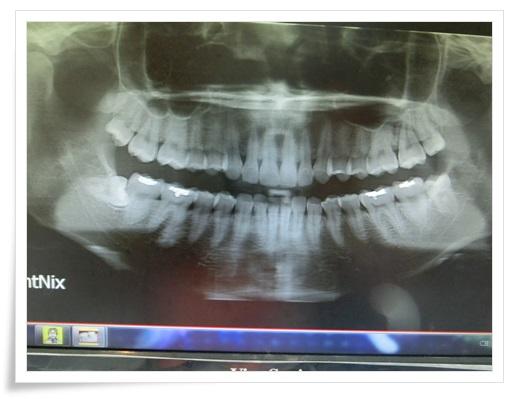 ●高雄牙齒矯正診所推薦●高雄牙齒矯正分期及牙醫師推薦高雄牙醫診所,醫師在裝牙套時好溫柔也好專業唷~矯正牙齒變美麗!!