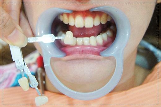 【牙齒美白】高雄牙醫診所做冷光牙齒美白推薦分享,價格比較公道~醫師細心又專業~評價超好的呢!