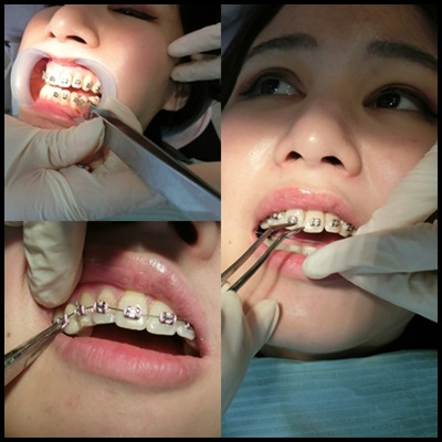 【高雄裝牙套】高雄牙齒矯正價格評價分享※高雄牙醫診所好多人推薦,不管是牙科矯正費用還是技術都讓人很滿意!