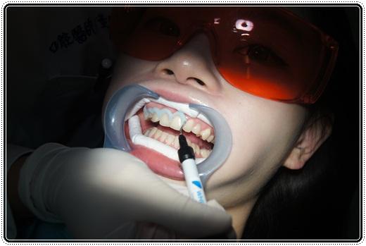 【高雄】冷光牙齒美白介紹分享※高雄牙醫診所的牙齒冷光美白好多推薦~不只評價好價格我更是滿意!