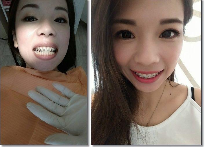 【牙齒矯正專科】在高雄牙醫診所給矯正牙齒權威裝牙套,除了價格能分期外,也是診所名單中最多人推薦的!專業又有品質~開心!