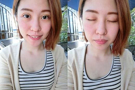 【高雄雙眼皮】我朋友在高雄的整形外科診所割雙眼皮超好看的!我自己做了韓式釘書針雙眼皮手術後也超滿意,價格更符合我的預算~CP值超高!