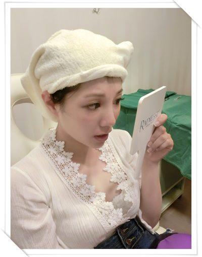 【高雄舒顏萃比較】高雄醫美診所的舒顏萃Sculptra及3D聚左旋乳酸童顏針評價超好,音波拉皮的效果也讓臉型更好看了!