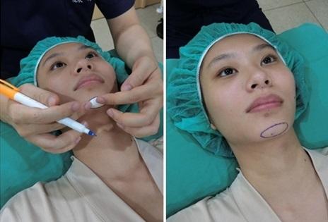 【高雄墊下巴推薦】高雄整形外科診所的墊下巴手術好專業,費用也非常划算,是非常多人推薦評價又好的醫美診所了!