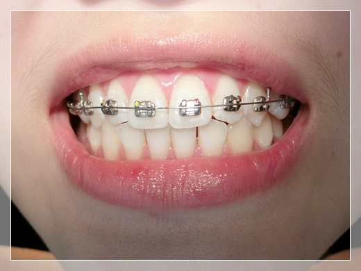 【高雄牙齒矯正】高雄牙科診所裝牙套推薦這間牙齒矯正專科,矯正器是粉色的~超可愛!!醫師人也超專業超貼心的~~~