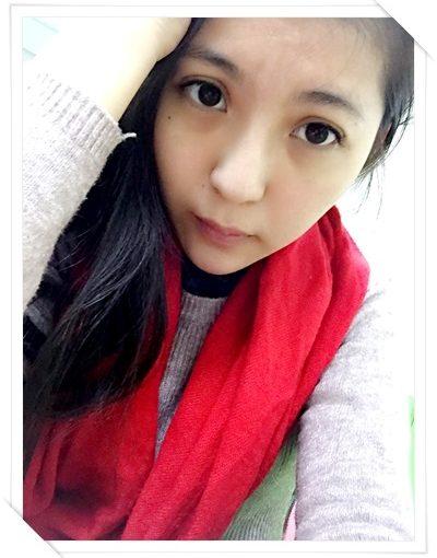 【台南肉毒介紹】分享台南醫美診所的心型美人微整評論超好~玻尿酸打山根、下巴及蘋果肌讓我的臉變立體又自然~加上肉毒瘦小臉效果就更好看啦!