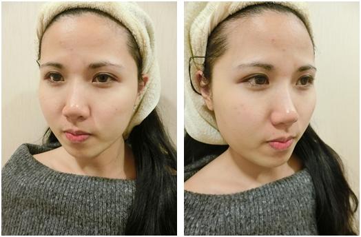 【台南玻尿酸比較】超謝謝我朋友推薦我到台南做微整~台南肉毒瘦小臉及玻尿酸注射經驗~是相當專業又有品質的台南醫美整形外科診所呢