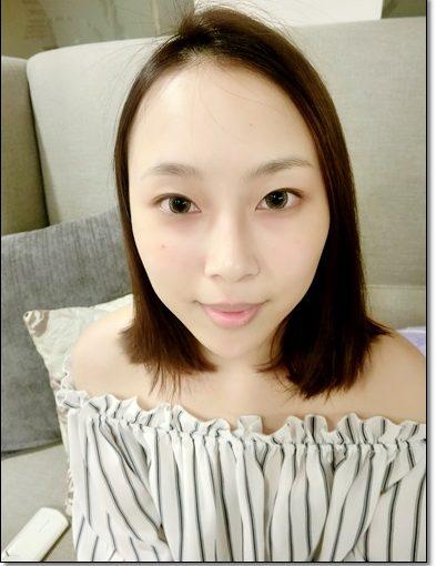 【台南肉毒評價】台南醫美整形外科診所做的微整價錢分享~打肉毒瘦小臉及玻尿酸蘋果肌效果超好~經驗超棒~難怪很多人推薦呀!