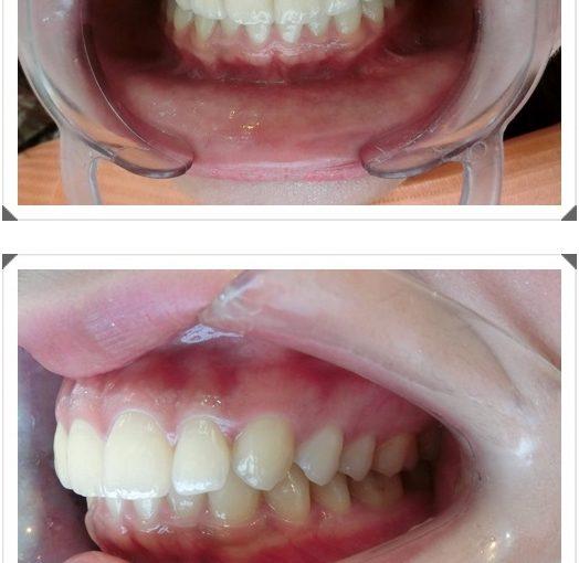 【台南牙醫師推薦】朋友推薦到台南牙醫診所裝牙套,我做的牙齒矯正手術費用可以分期外,還是專業的牙醫權威矯正的唷!