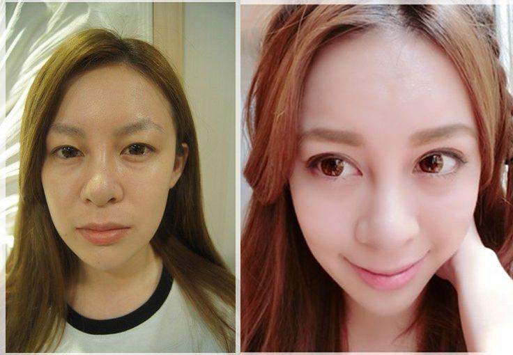 【台南雙眼皮分享】到台南整型診所做最新型的韓式雙眼皮,我做的訂書針雙眼皮一點都不腫~還推薦給超多朋友,不論是技術還是價錢他們都很滿意唷!