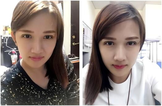 【台南雙眼皮】我朋友在台南的整形外科診所割雙眼皮超好看的!我自己做了韓式釘書針雙眼皮手術後也超滿意,價格更符合我的預算~CP值超高!