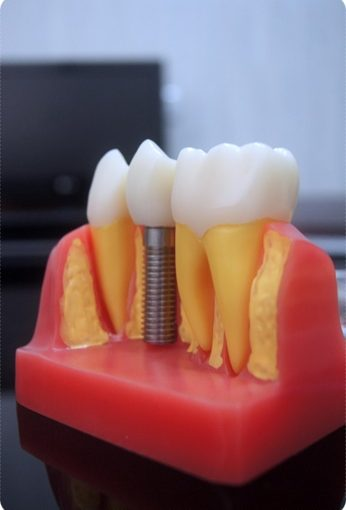 【台南牙科推薦】比較台南牙科診所牙醫植牙技術推薦~看了評論分享牙醫資訊,完整的諮詢和說明是我決定進行植牙的關鍵。