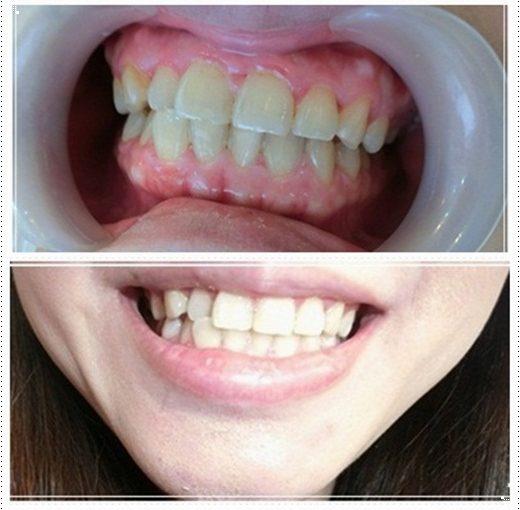 【冷光牙齒美白介紹】台南冷光牙齒美白分享~到朋友推薦的台南牙醫診所,牙醫師比較厲害外,也非常的仔細唷!