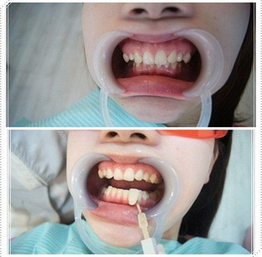 【台南】冷光牙齒美白介紹分享※台南牙醫診所的牙齒冷光美白好多推薦~不只評價好價格我更是滿意!