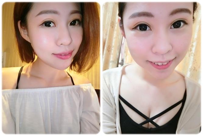 【台南雙眼皮價錢】分享我在台南醫美診所做的韓式釘書針雙眼皮手術,這家整型診所超多人推薦外,技術及價格都讓我超滿意的!