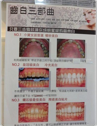【冷光牙齒美白】台南冷光牙齒美白評論○分享好多牙齒美白方法,最滿意到台南牙醫診所做冷光美白牙齒,價格也很合理!