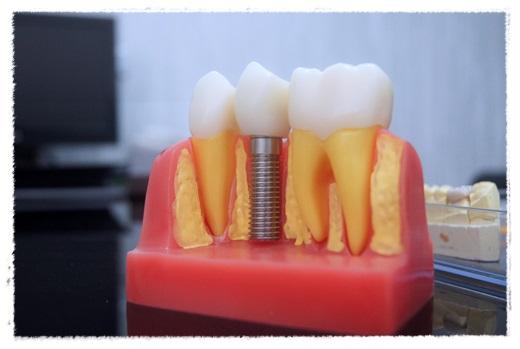 【台南牙醫】台南牙醫診所的雷射植牙評價相當好,滿多人推薦的唷!除了是植牙權威外,價格也很親民可分期~超讚的吧!