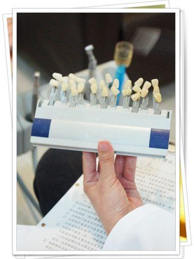 【冷光美白】台南牙醫診所做牙齒冷光美白經驗和價格都比較優,評價資訊都很好~還超多人推薦呢!