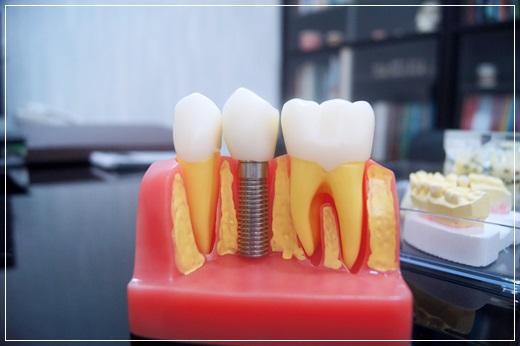 【台南植牙】在親朋好友推薦下,來到台南牙醫診所植牙,醫師分享資訊很詳細,價格也說明的很清楚,而且設備先進,讓我恢復健康的牙齒狀態~