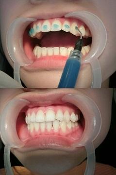 【台南裝牙套】牙齒矯正專科診所及價格分期資訊分享※給牙齒矯正權威醫生裝牙套好放心~台南牙醫診所超多人推薦呢!
