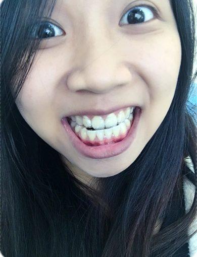 【牙科矯正費用】台南牙科診所的牙齒矯正權威分享!找牙齒矯正專科裝牙套比較推薦,費用也相當合理呢!