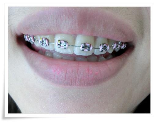 ●台南牙齒矯正診所推薦●台南牙齒矯正分期及牙醫師推薦台南牙醫診所,醫師在裝牙套時好溫柔也好專業唷~矯正牙齒變美麗!!