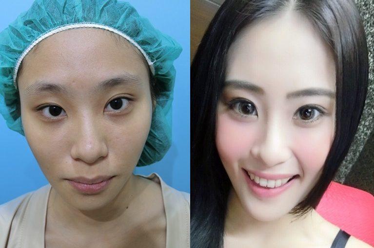 【台南墊下巴推薦】台南整形外科診所的墊下巴手術好專業,費用也非常划算,是非常多人推薦評價又好的醫美診所了!