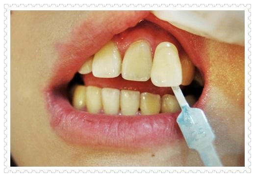 ○台北牙齒美白○牙齒的做冷光牙齒美白推薦台北牙醫診所,醫師每個動作都超仔細的,讓我的牙齒變好白淨唷~開心!!