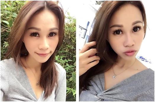 【台北縫雙眼皮評論】整型診所我建議到台北割雙眼皮手術價格公道又專業的整形外科診所,好滿意我的雙眼皮,真的好有神又很自然呢!