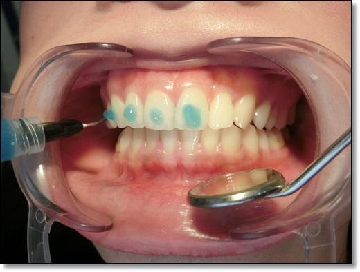 *台北牙套妹矯正日記*在台北牙醫診所給牙齒矯正權威矯正牙,先進的設備和技術,讓我更美麗心願有望達成~