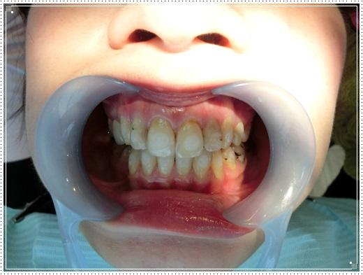 【牙齒矯正】分享台北牙醫診所牙齒矯正權威及費用,裝牙套好專業又相當溫柔,好期待我整齊的牙齒阿~超推薦!