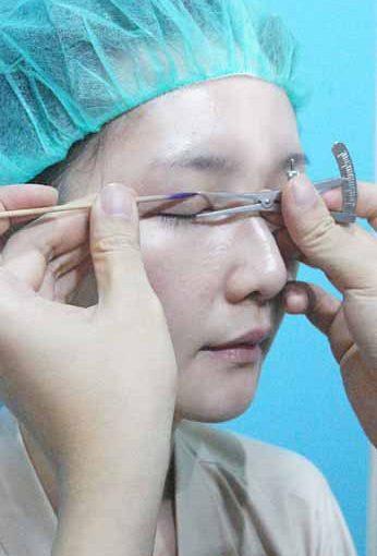 【台北縫雙眼皮診所】台北整形外科診所縫雙眼皮整型手術推薦~好滿意在台北醫美診所做的雙眼皮手術,真的好自然又好有神唷~~